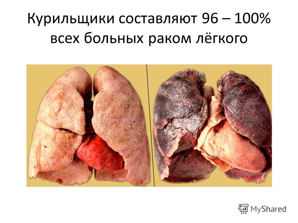 Курильщики составляют 96 – 100% всех больных раком лёгкого