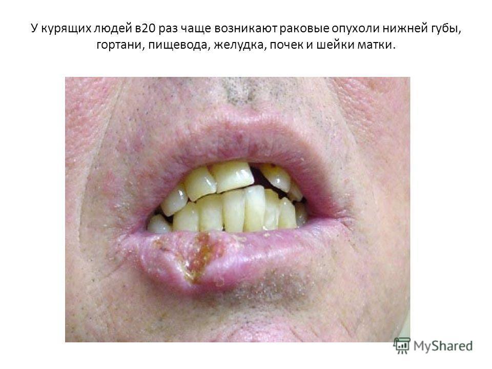 У курящих людей в20 раз чаще возникают раковые опухоли нижней губы, гортани, пищевода, желудка, почек и шейки матки.