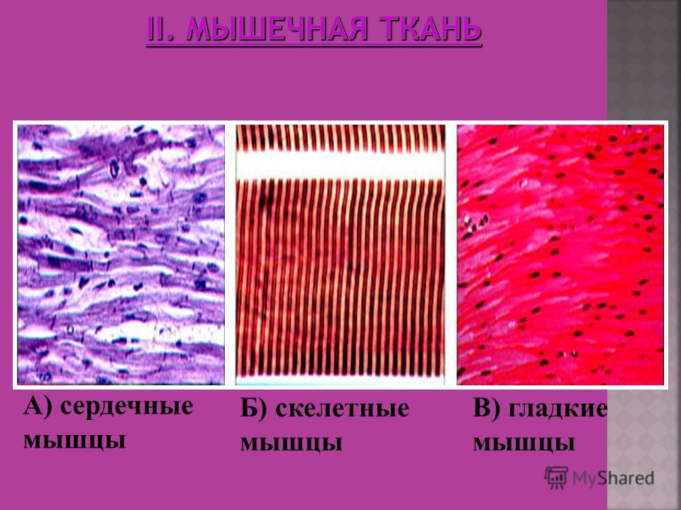 А) сердечные мышцы Б) скелетные мышцы В) гладкие мышцы