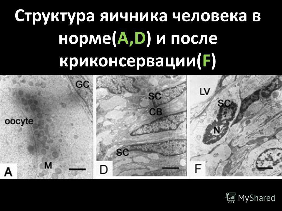 Структура яичника человека в норме(А,D) и после криконсервации(F)