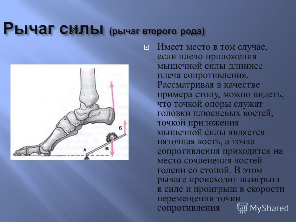 Имеет место в том случае, если плечо приложения мышечной силы длиннее плеча сопротивления. Рассматривая в качестве примера стопу, можно видеть, что точкой опоры служат головки плюсневых костей, точкой приложения мышечной силы является пяточная кость,