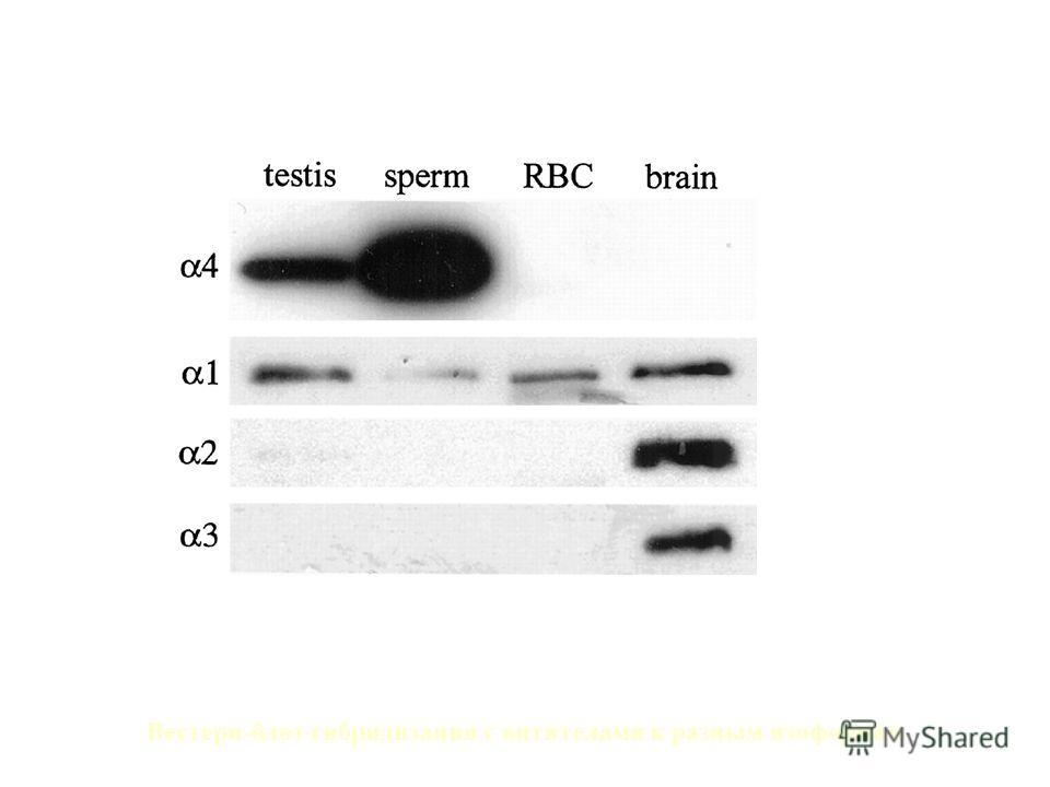 α1 и α4 изоформы Na/K-АТPазы экспрессируются в сперматозоидах крыс Вестерн-блот гибридизация с антителами к разным изоформам СеменникиСперма из придатков семенников ЭритроцитыМозг