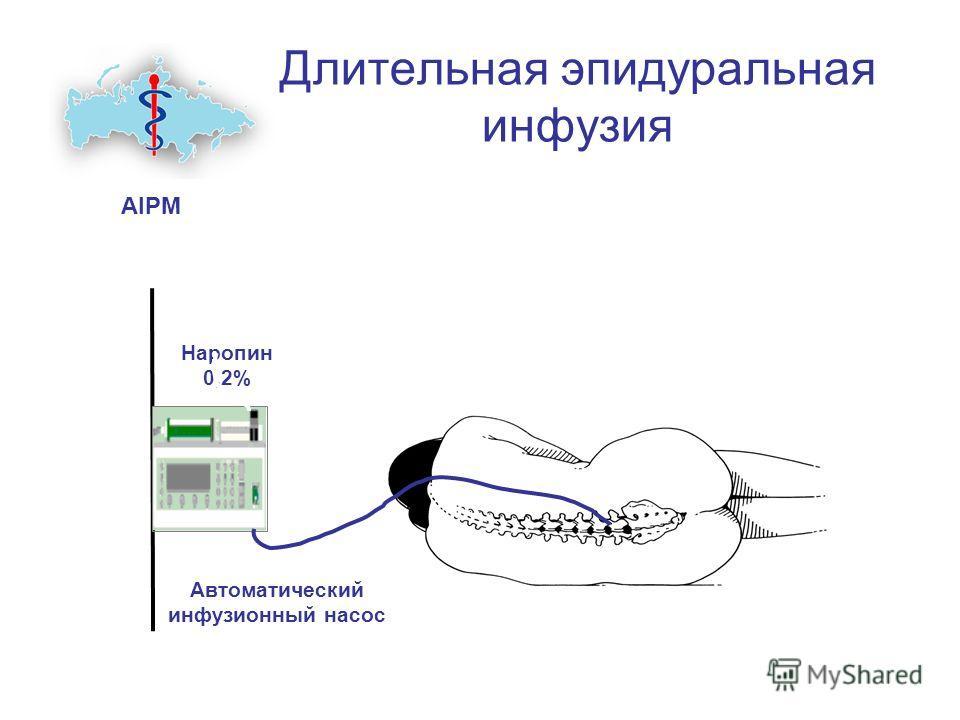 Длительная эпидуральная инфузия AIPM Наропин 0,2% Автоматический инфузионный насос