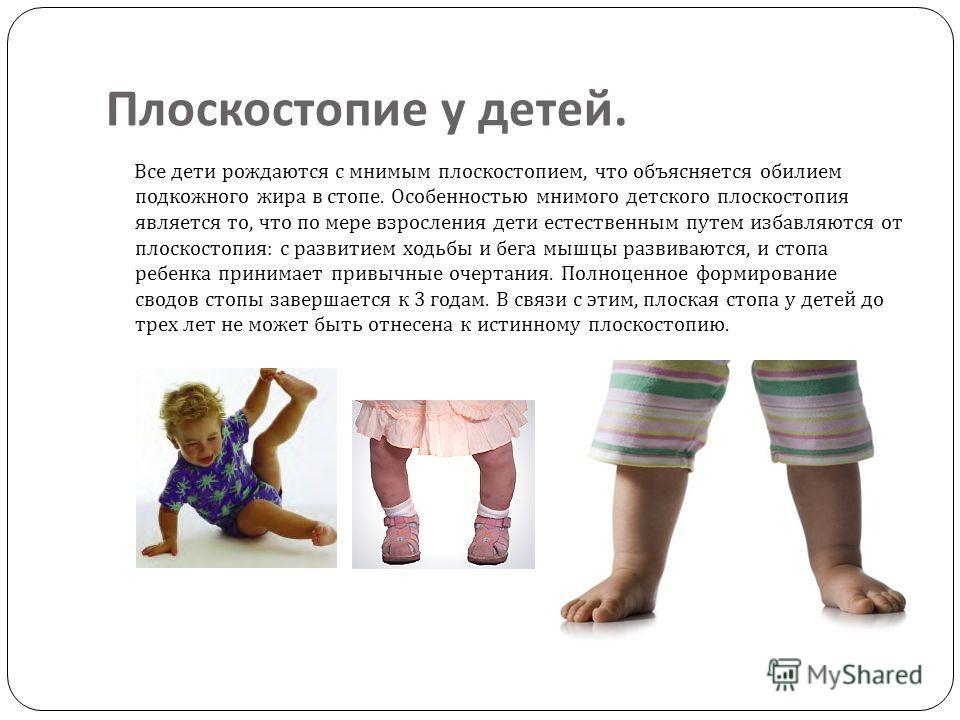 Плоскостопие у детей. Все дети рождаются с мнимым плоскостопием, что объясняется обилием подкожного жира в стопе. Особенностью мнимого детского плоскостопия является то, что по мере взросления дети естественным путем избавляются от плоскостопия : с р