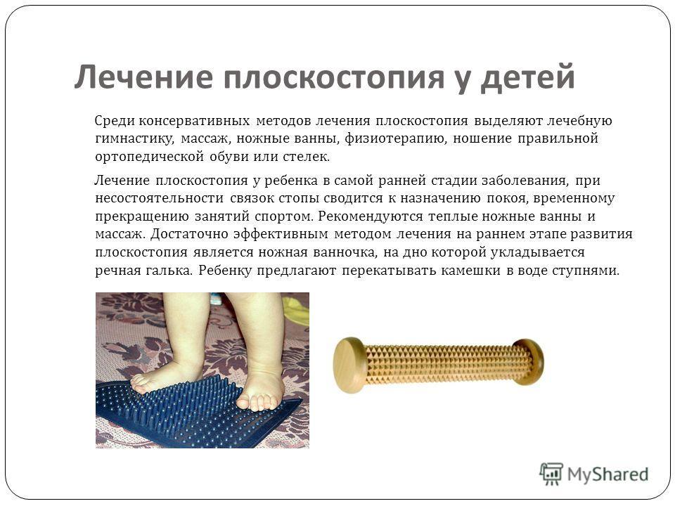 Лечение плоскостопия у детей Среди консервативных методов лечения плоскостопия выделяют лечебную гимнастику, массаж, ножные ванны, физиотерапию, ношение правильной ортопедической обуви или стелек. Лечение плоскостопия у ребенка в самой ранней стадии