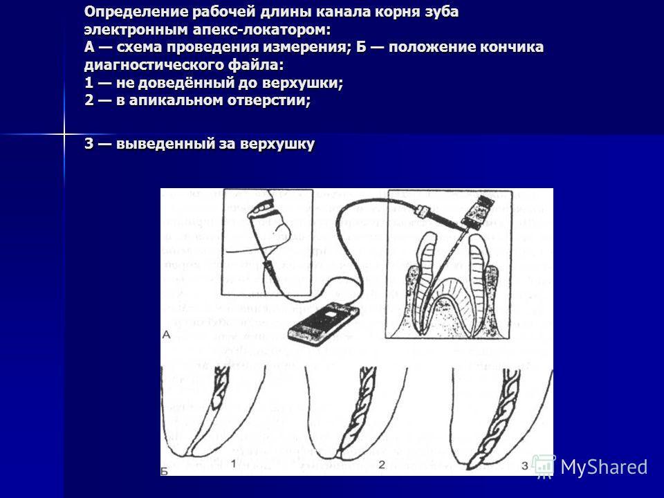 Определение рабочей длины канала корня зуба электронным апекс-локатором: А схема проведения измерения; Б положение кончика диагностического файла: 1 не доведённый до верхушки; 2 в апикальном отверстии; 3 выведенный за верхушку