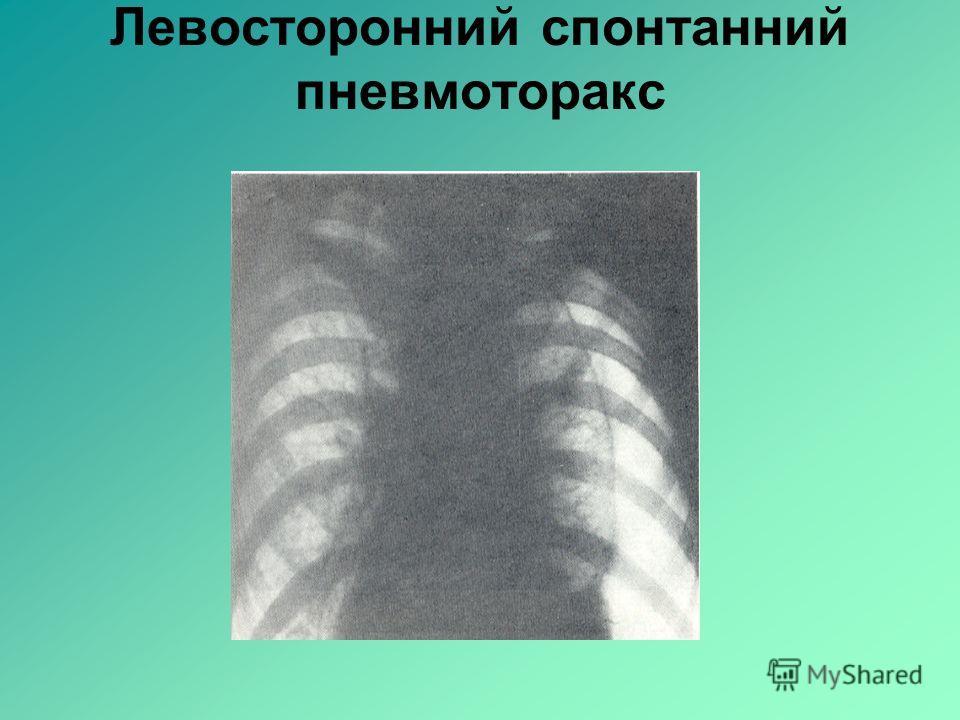 Левосторонний спонтанний пневмоторакс