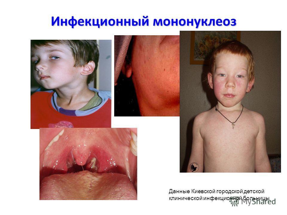 Инфекционный мононуклеоз Данные Киевской городской детской клинической инфекционной больницы