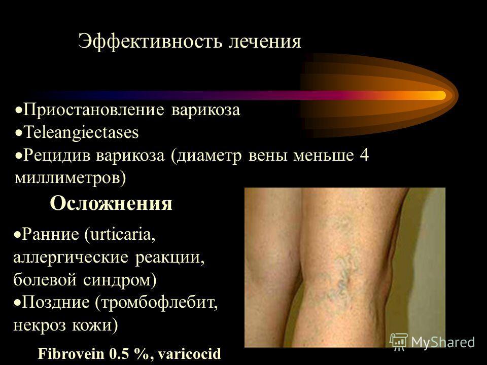 Эффективность лечения Приостановление варикоза Teleangiectases Рецидив варикоза (диаметр вены меньше 4 миллиметров) Осложнения Ранние (urticaria, аллергические реакции, болевой синдром) Поздние (тромбофлебит, некроз кожи) Fibrovein 0.5 %, varicocid