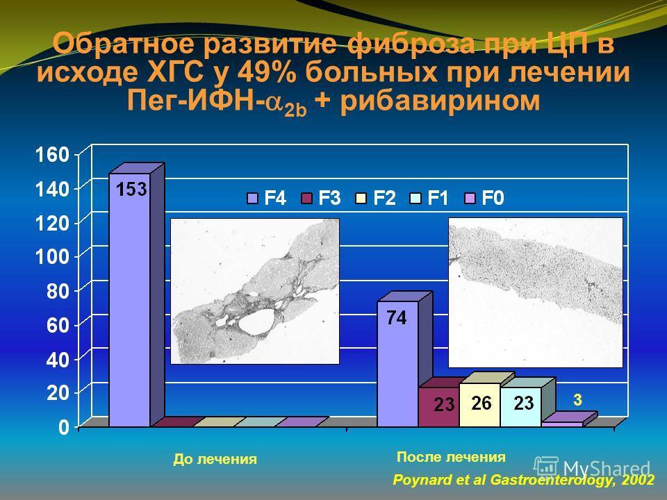 Обратное развитие фиброза при ЦП в исходе ХГС у 49% больных при лечении Пег-ИФН- 2b + рибавирином Poynard et al Gastroenterology, 2002 До лечения После лечения 3