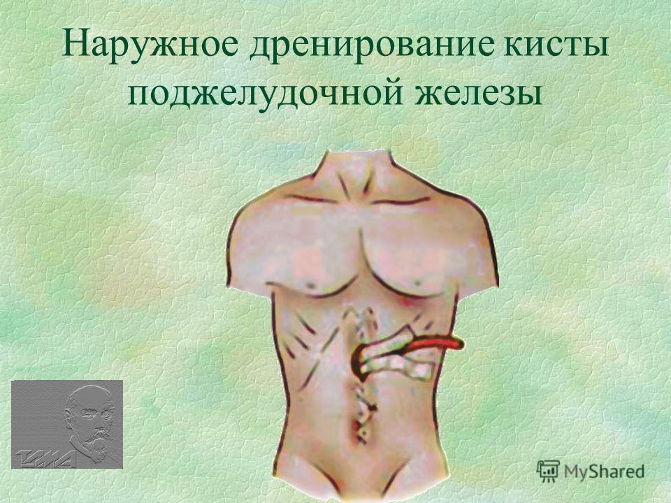 Наружное дренирование кисты поджелудочной железы