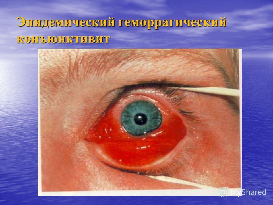 Эпидемический геморрагический конъюнктивит