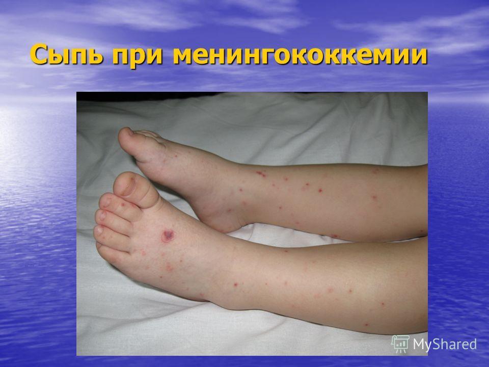Сыпь при менингококкемии