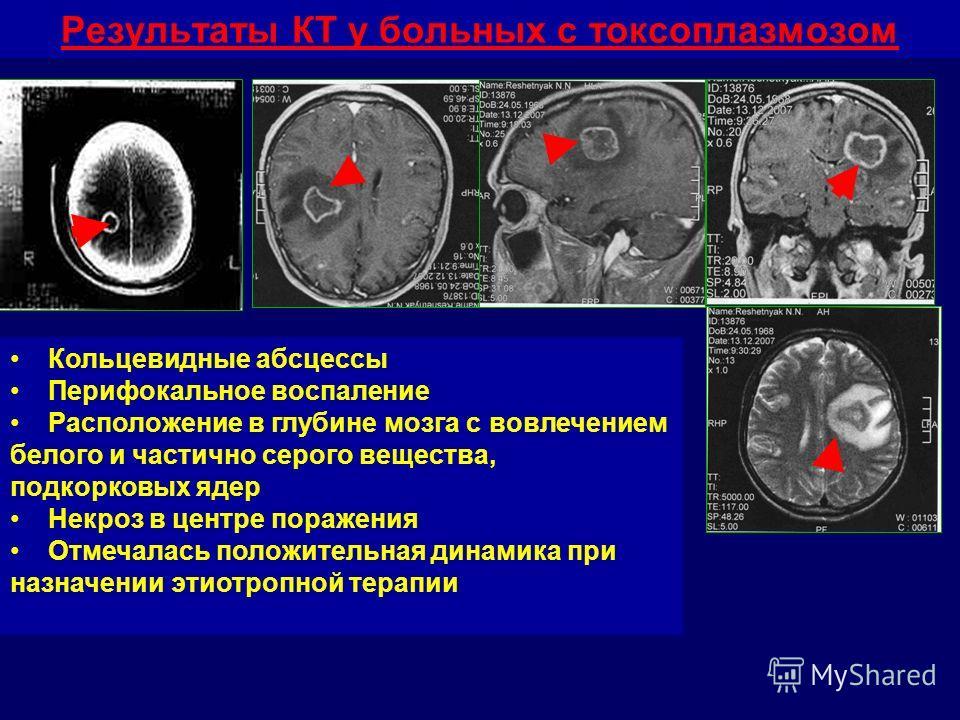 Результаты КТ у больных с токсоплазмозом Кольцевидные абсцессы Перифокальное воспаление Расположение в глубине мозга с вовлечением белого и частично серого вещества, подкорковых ядер Некроз в центре поражения Отмечалась положительная динамика при наз