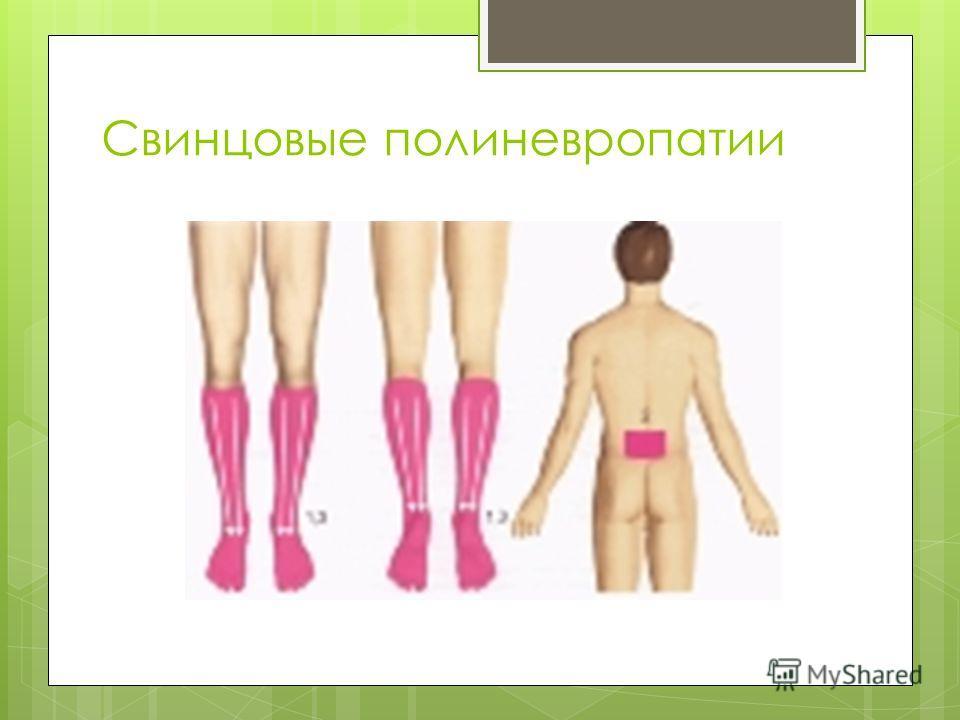 Свинцовые полиневропатии