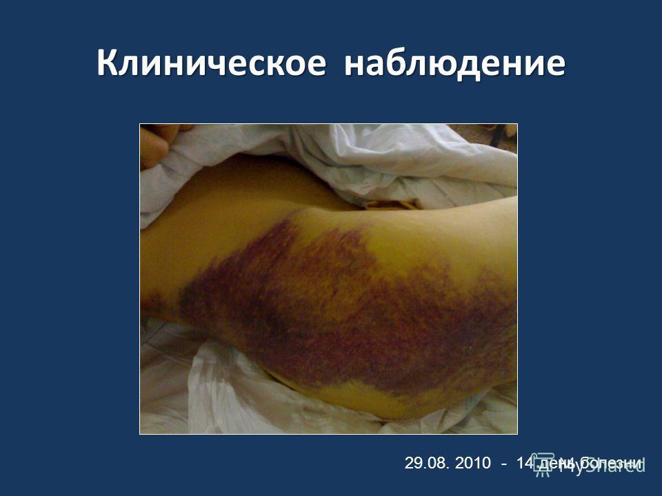 Клиническое наблюдение 29.08. 2010 - 14 день болезни