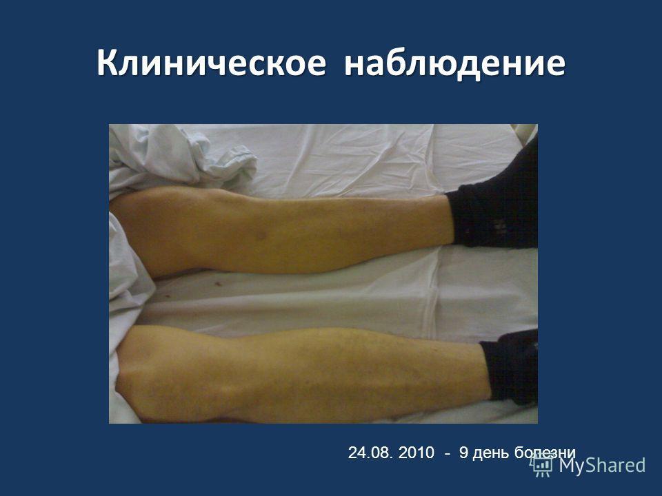 Клиническое наблюдение 24.08. 2010 - 9 день болезни