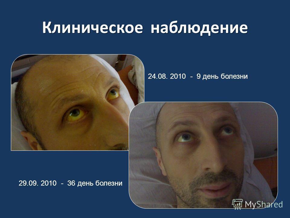 Клиническое наблюдение 24.08. 2010 - 9 день болезни 29.09. 2010 - 36 день болезни