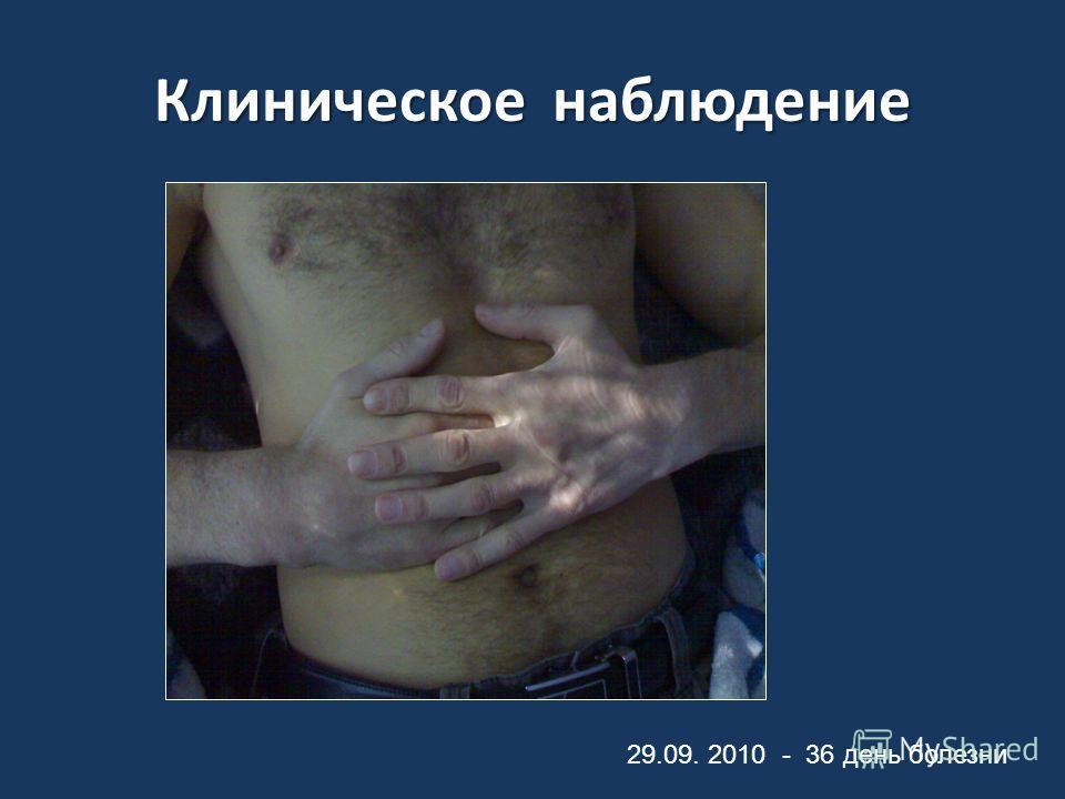 Клиническое наблюдение 29.09. 2010 - 36 день болезни