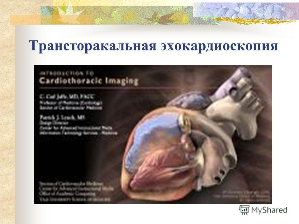 Трансторакальная эхокардиоскопия