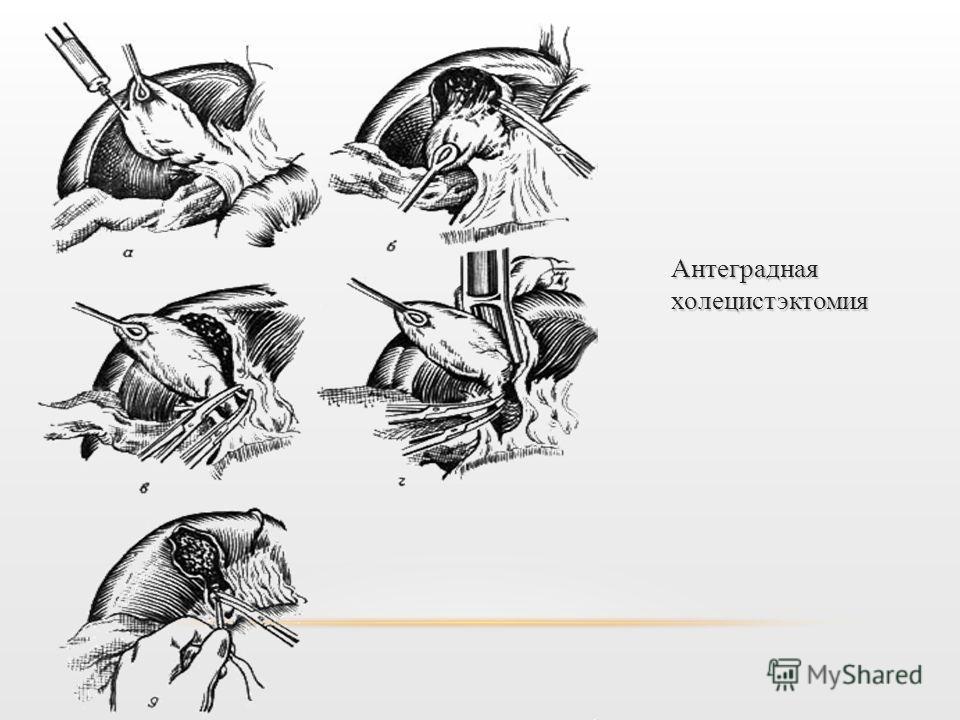 Антеградная холецистэктомия