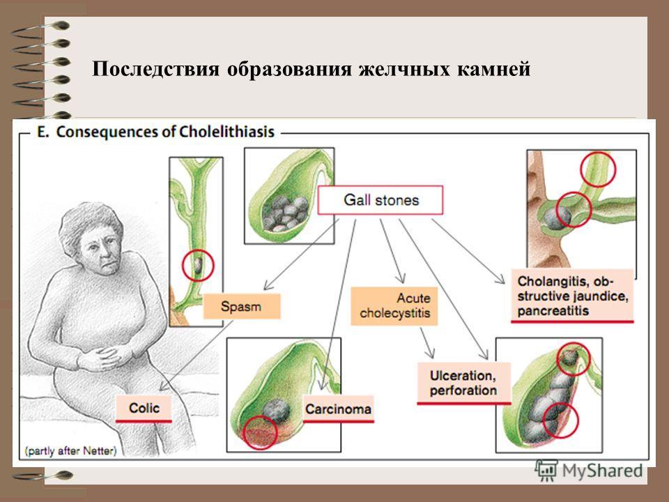 Последствия образования желчных камней