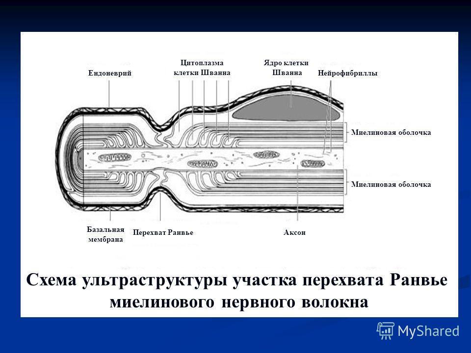 Схема ультраструктуры участка