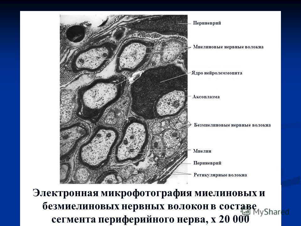 Электронная микрофотография миелиновых и безмиелиновых нервных волокон в составе сегмента периферийного нерва, х 20 000 Периневрий Ядро нейролеммоцита Аксоплазма Миелиновые нервные волокна Безмиелиновые нервные волокна Миелин Периневрий Ретикулярные