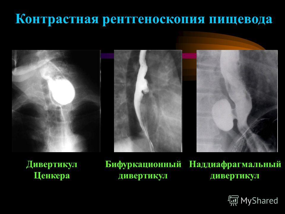 Дивертикул Ценкера Бифуркационный дивертикул Наддиафрагмальный дивертикул Контрастная рентгеноскопия пищевода