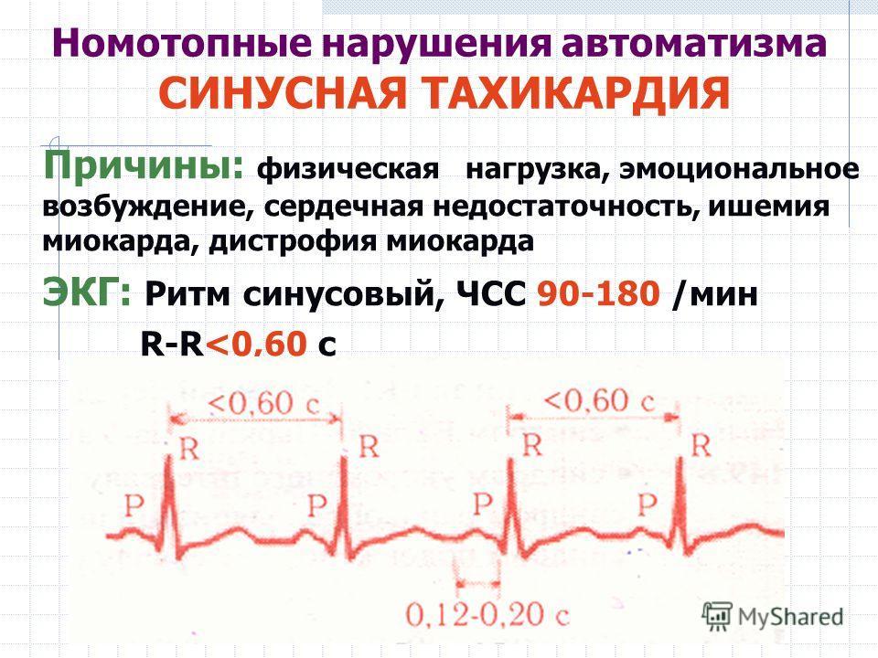Номотопные нарушения автоматизма СИНУСНАЯ ТАХИКАРДИЯ Причины: физическая нагрузка, эмоциональное возбуждение, сердечная недостаточность, ишемия миокарда, дистрофия миокарда ЭКГ: Ритм синусовый, ЧСС 90-180 /мин R-R