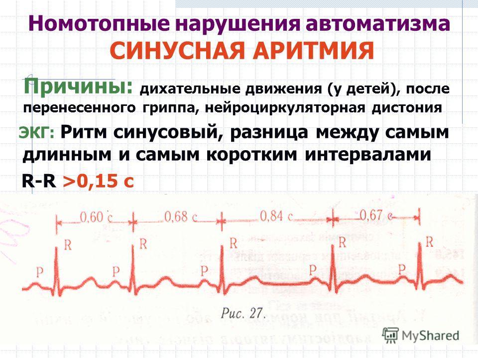 Номотопные нарушения автоматизма СИНУСНАЯ АРИТМИЯ Причины: дихательные движения (у детей), после перенесенного гриппа, нейроциркуляторная дистония ЭКГ: Ритм синусовый, разница между самым длинным и самым коротким интервалами R-R >0,15 с