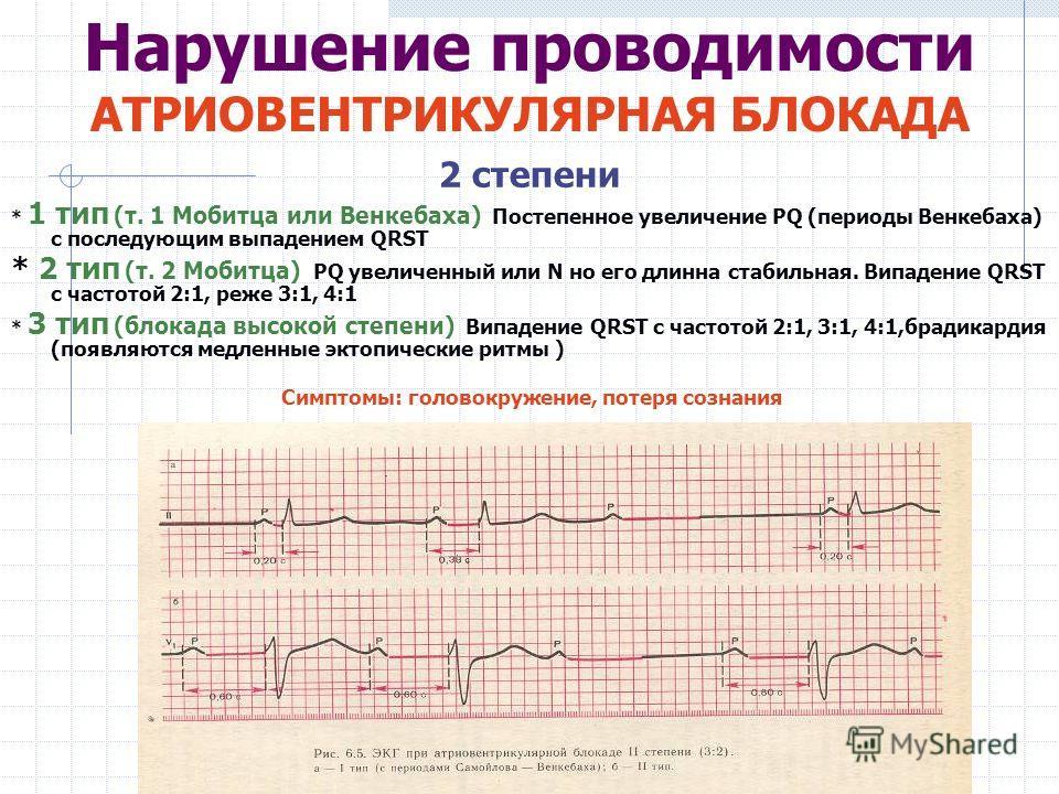 2 степени * 1 тип (т. 1 Мобитца или Венкебаха) Постепенное увеличение PQ (периоды Венкебаха) с последующим выпадением QRST * 2 тип (т. 2 Мобитца) PQ увеличенный или N но его длинна стабильная. Випадение QRST с частотой 2:1, реже 3:1, 4:1 * 3 тип (бло