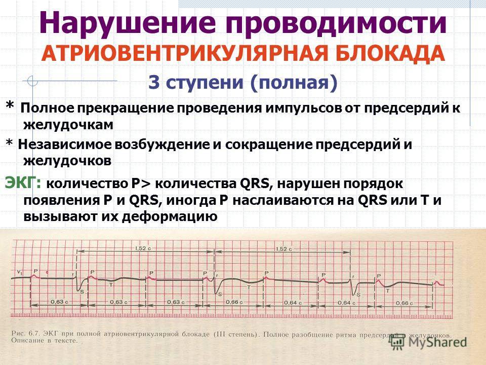 Нарушение проводимости АТРИОВЕНТРИКУЛЯРНАЯ БЛОКАДА 3 ступени (полная) * Полное прекращение проведения импульсов от предсердий к желудочкам * Независимое возбуждение и сокращение предсердий и желудочков ЭКГ: количество Р> количества QRS, нарушен поряд