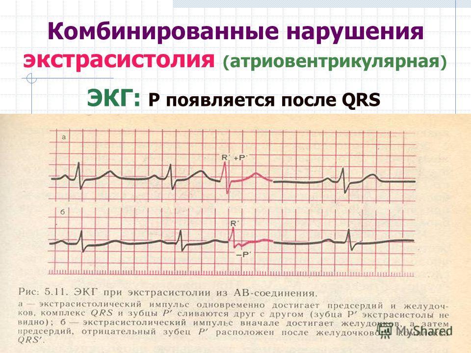Комбинированные нарушения экстрасистолия ( атриовентрикулярная ) ЭКГ: Р появляется после QRS