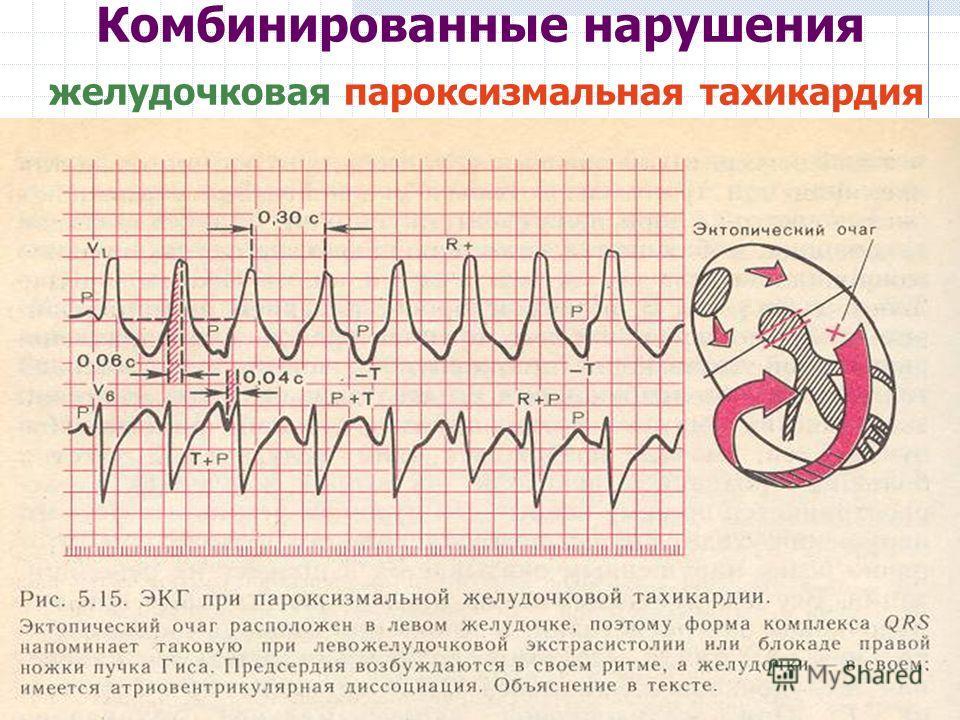 Комбинированные нарушения желудочковая пароксизмальная тахикардия