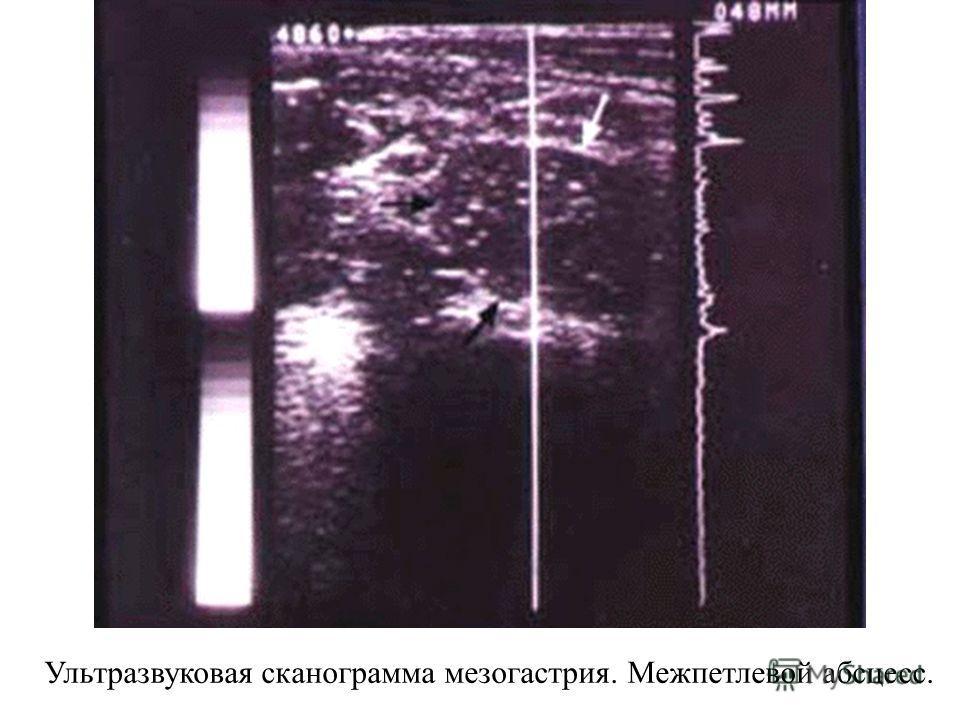 Ультразвуковая сканограмма мезогастрия. Межпетлевой абсцесс.