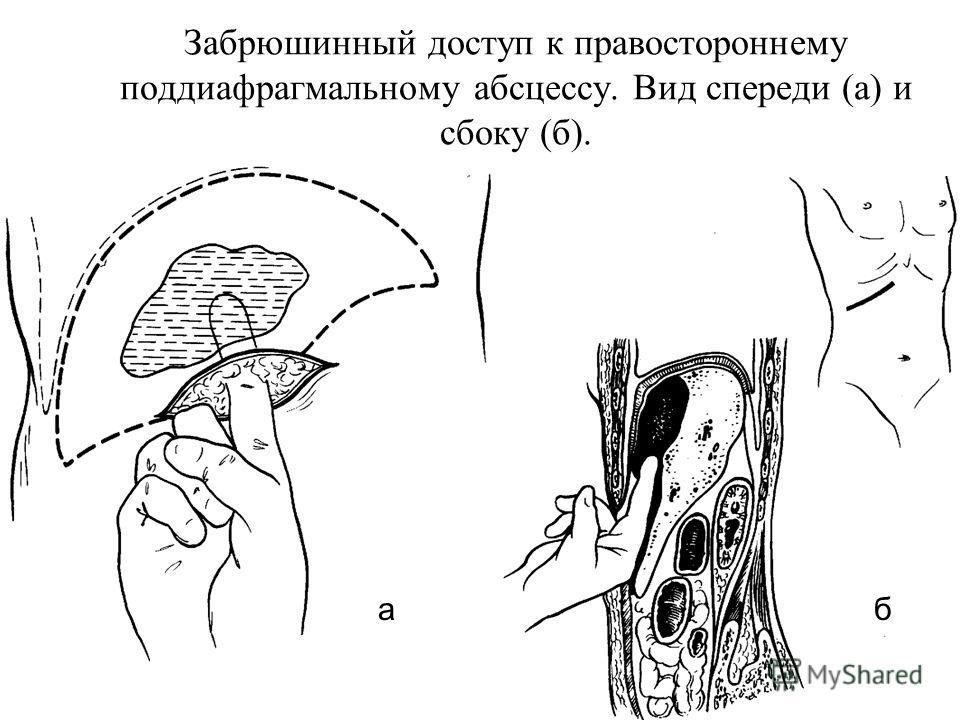 Забрюшинный доступ к правостороннему поддиафрагмальному абсцессу. Вид спереди (а) и сбоку (б). аб