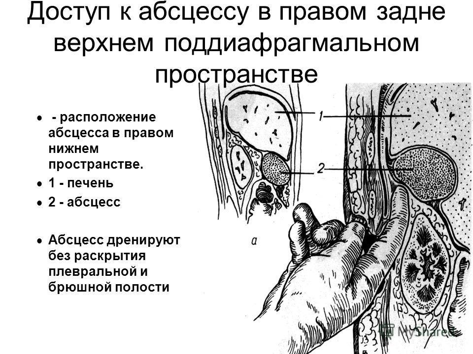 Доступ к абсцессу в правом задне верхнем поддиафрагмальном пространстве - расположение абсцесса в правом нижнем пространстве. 1 - печень 2 - абсцесс Абсцесс дренируют без раскрытия плевральной и брюшной полости