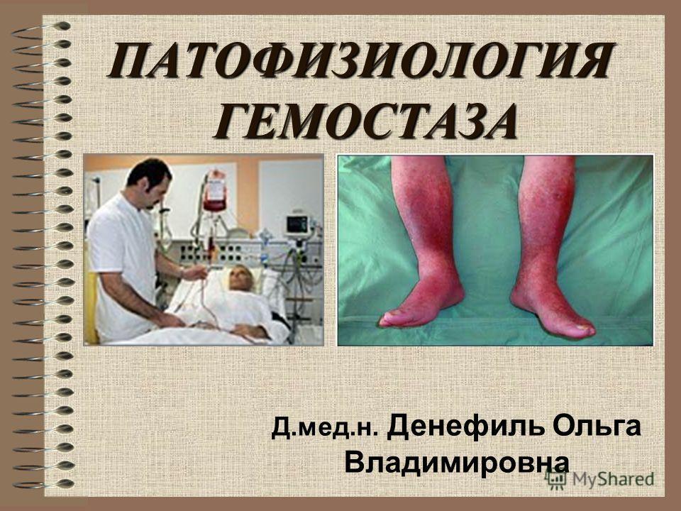 ПАТОФИЗИОЛОГИЯ ГЕМОСТАЗА Д.мед.н. Денефиль Ольга Владимировна
