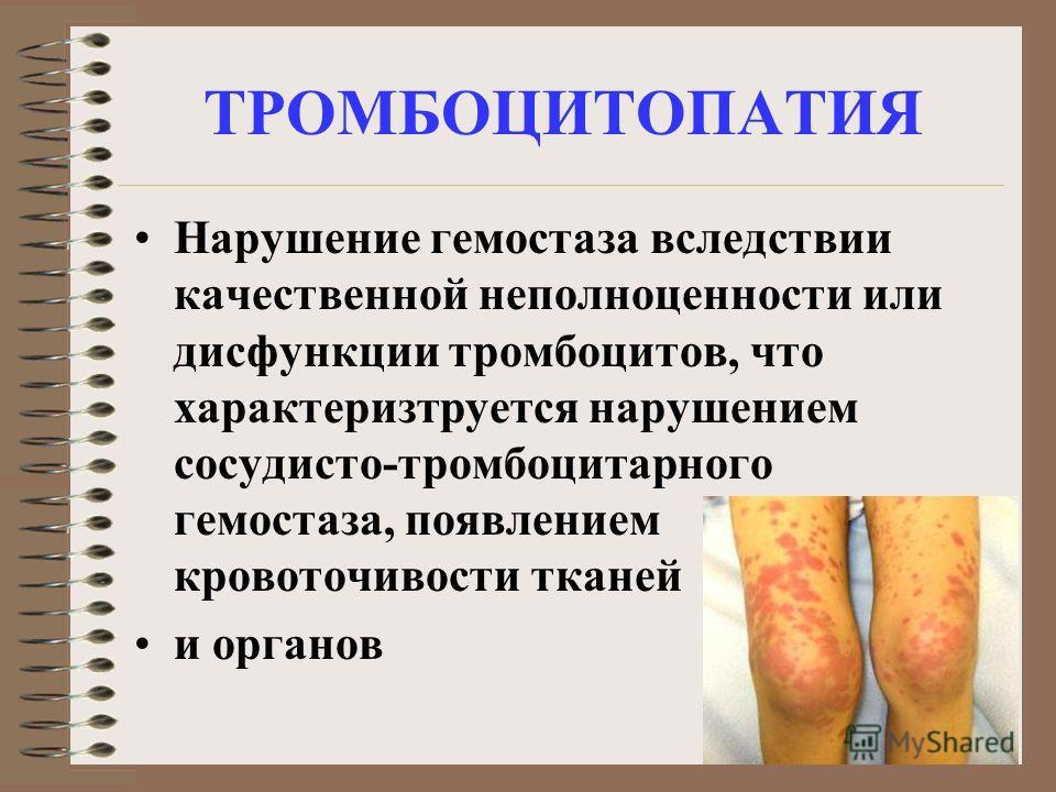 ТРОМБОЦИТОПАТИЯ Нарушение гемостаза вследствии качественной неполноценности или дисфункции тромбоцитов, что характеризтруется нарушением сосудисто-тромбоцитарного гемостаза, появлением кровоточивости тканей и органов