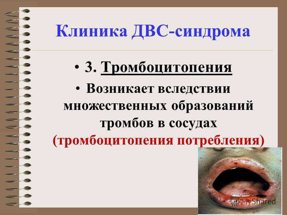 Клиника ДВС-синдрома 3. Тромбоцитопения Возникает вследствии множественных образований тромбов в сосудах (тромбоцитопения потребления)