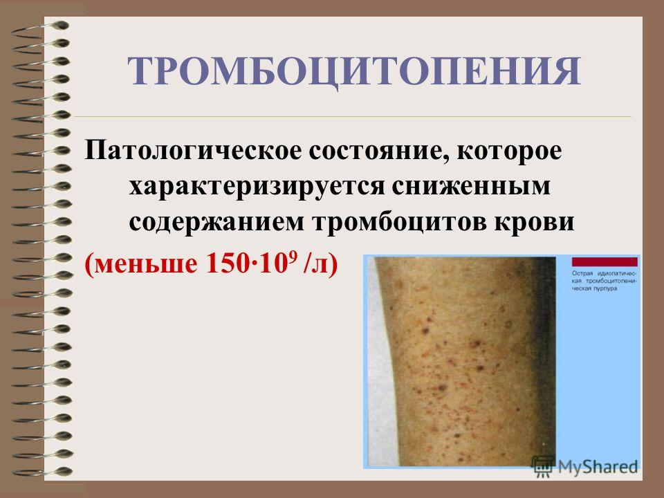 ТРОМБОЦИТОПЕНИЯ Патологическое состояние, которое характеризируется сниженным содержанием тромбоцитов крови (меньше 150·10 9 /л)
