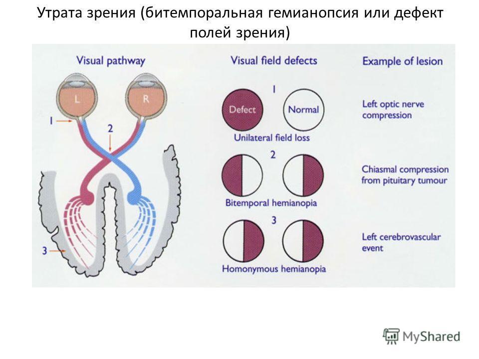 Утрата зрения (битемпоральная гемианопсия или дефект полей зрения)