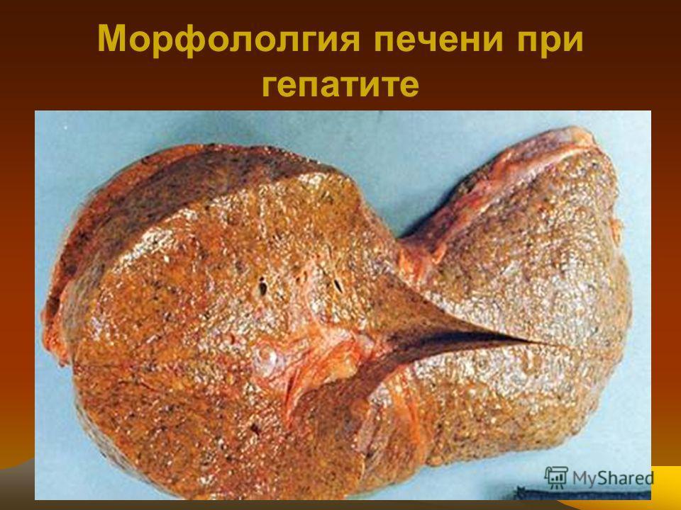 Фото больных детей гепатитом