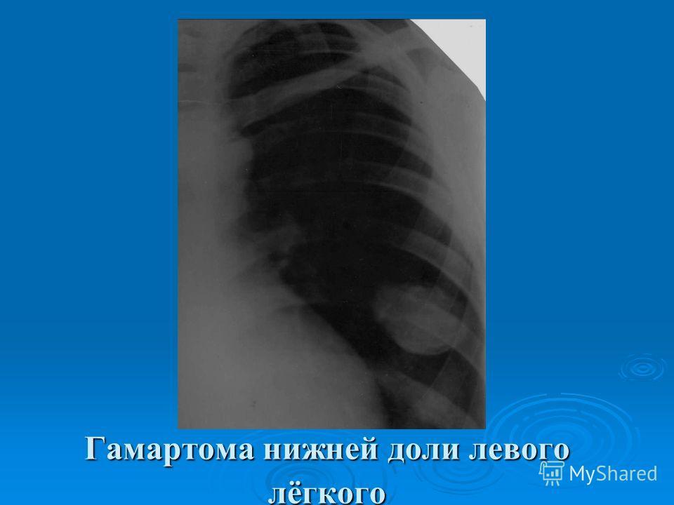 Гамартома нижней доли левого лёгкого