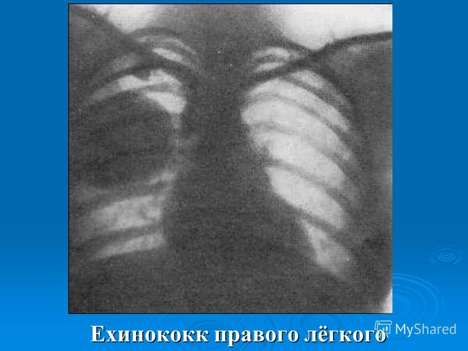 Ехинококк правого лёгкого