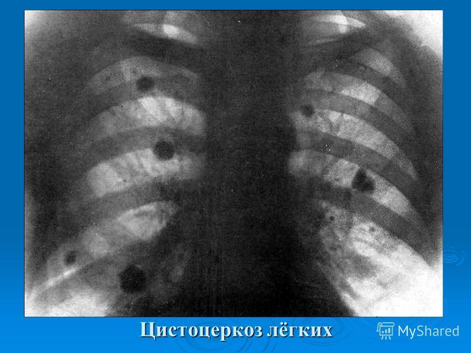 Цистоцеркоз лёгких