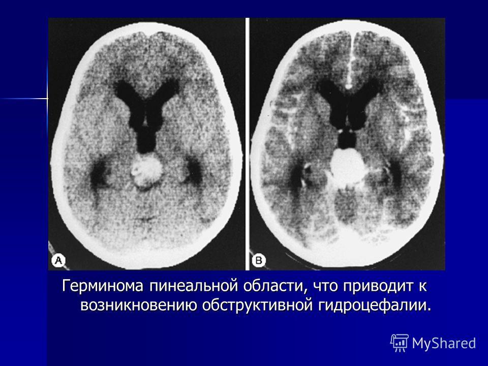 Герминома пинеальной области, что приводит к возникновению обструктивной гидроцефалии.