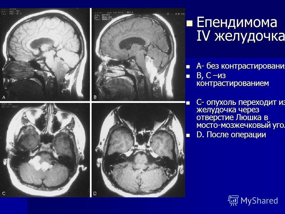 Епендимома IV желудочка Епендимома IV желудочка А- без контрастирования А- без контрастирования В, C –из контрастированием В, C –из контрастированием С- опухоль переходит из желудочка через отверстие Люшка в мосто-мозжечковый угол С- опухоль переходи