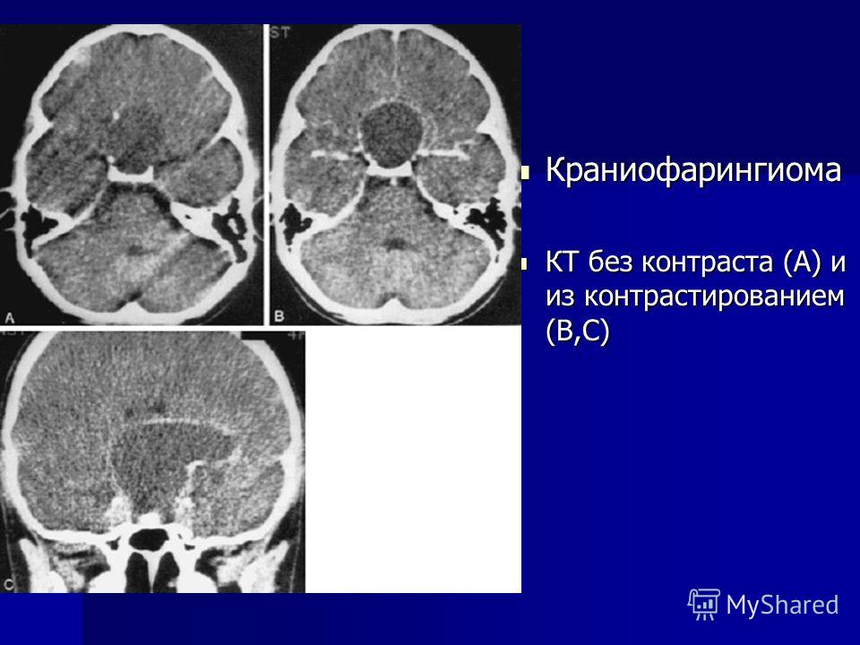 Краниофарингиома фото